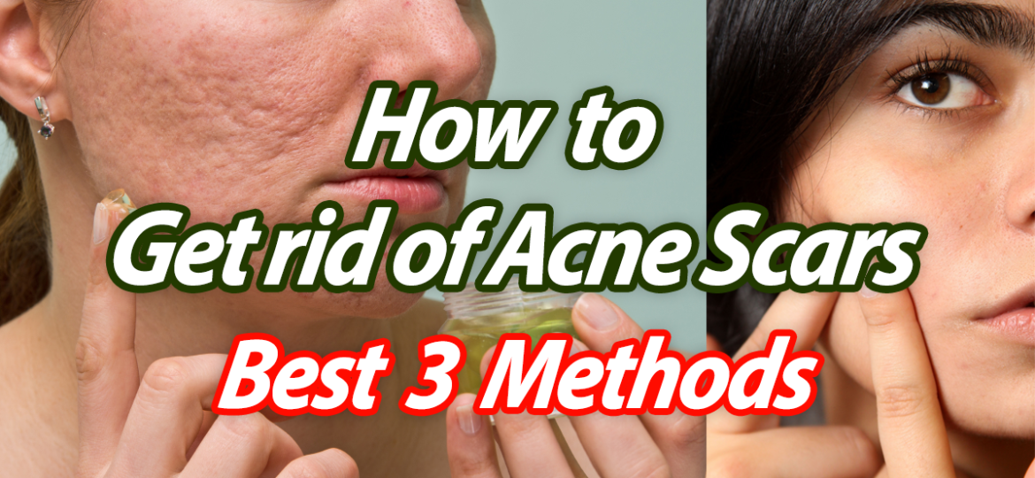 Get Rid Of Acne Scars Best 3 Methods