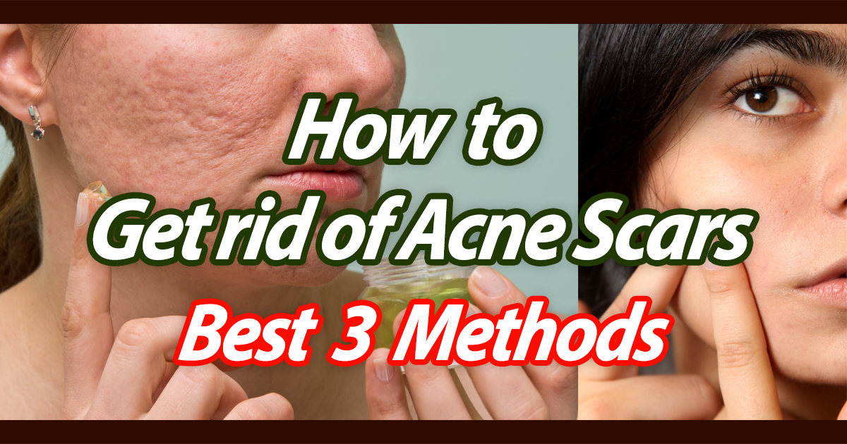how to get rid of acne scars procedures
